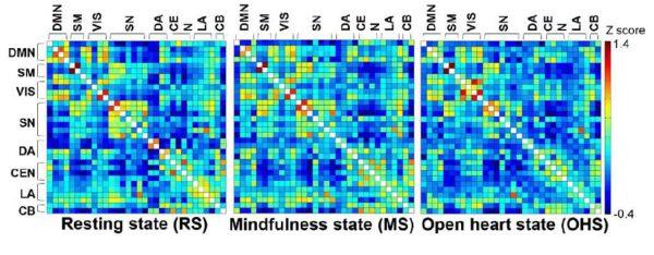MRI Study Resting/Mindfulness/Open Heart State